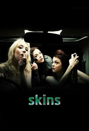 Серіал «Скінс» (2007 – 2013)