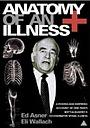 Фільм «Анатомия болезни» (1984)